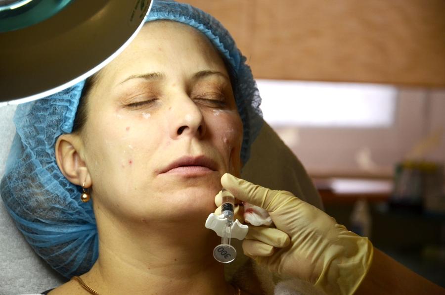 Вы просматриваете изображения у материала: Объемная контурная пластика лица – Тайна совершенства