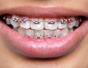 брекеты за зубах