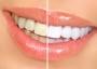 Отбеливание зубов - новые прогрессивные способы