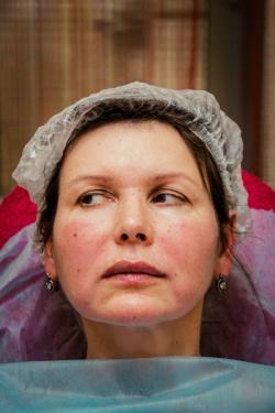 obemnoe modelirovanie lica posle procedury