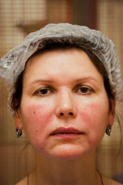 obemnoe modelirovanie lica posle procedury2